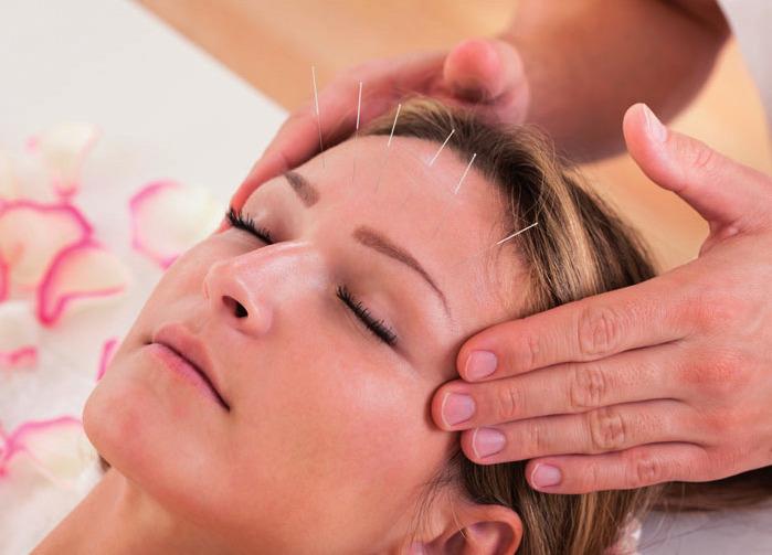 Die Augenakupunktur ist eine sehr entspannende Behandlung
