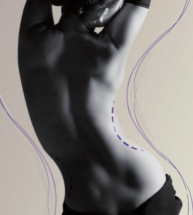 Der schlanken Silhouette nachhelfen FOTO: ©ALMA